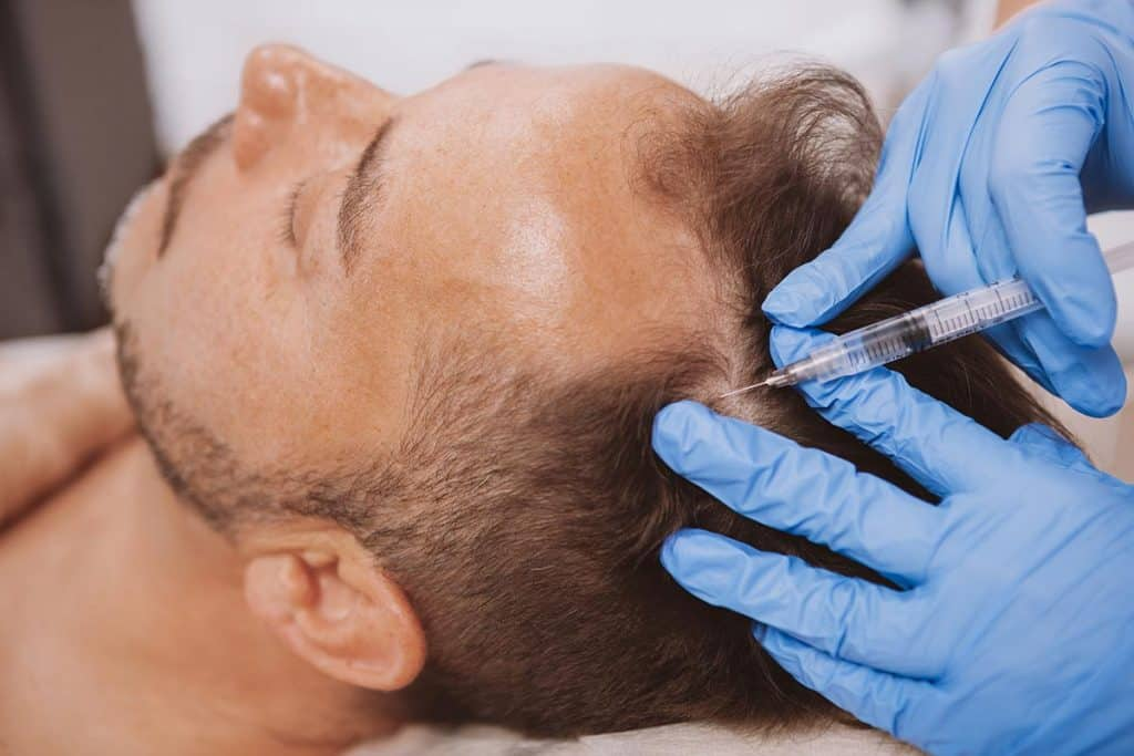 Hair Loss Treatment PRP Manchester
