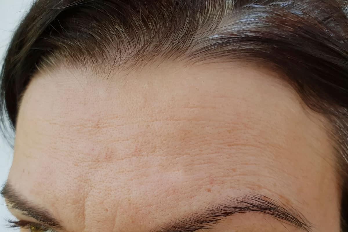 forehead before botox